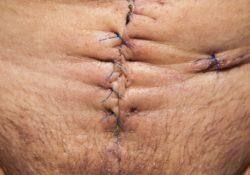 Correction de cicatrices : comment faire ?